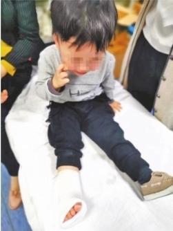 在手扶电梯跑上跑下被卡住 2岁男童折断3根脚趾